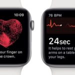 apple watch ecg screenshots
