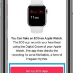 how to set up ecg app on iphone