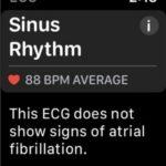 sinus rhythm ecg result on apple watch